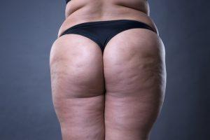 Come Eliminare Cellulite Da Cosce Interno Coscia E Glutei Rimedi